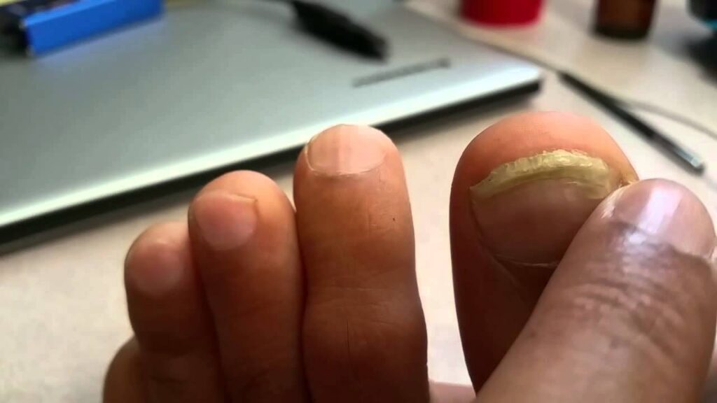 2015, 2nd Video, Toe Nail fungus healed with Colloidal Silver