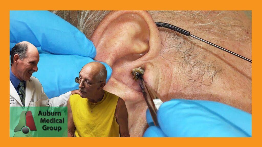 Colloidal Silver Ear Wax Part 2 | Auburn Medical Group
