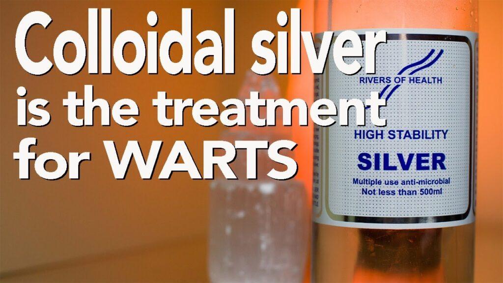 Colloidal Silver is the treatment for Warts | Human Papillomavirus | Adrian