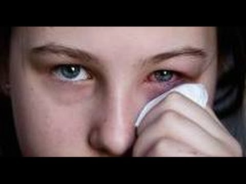 Pink Eye (Conjunctivitis) What Is It, How To Treat,Get Rid Of Pink Eye Fast + Colloidal Silver